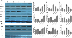 I3C induced Nrf2-mediated activation of ARE pathways as well as modulate the apoptotic/antiapoptotic pathways in bone marrow cells (A) Protein expression profile of Nrf2 (nuclear), Histone H3, Keap1, Nrf2 (cytosolic), NQO-1, HO-1, GSTπ and β-actin (B) Protein expression profile of Bcl-2, Bax, Caspase-3 and β-actin in mice bone marrow following different treatments. Lane 1: Vehicle-control group (VC), lane 2: only I3C-treated group (I3C), lane 3: only DOX-treated group (DOX), lane 4: DOX + I3C concomitant-treatment group (DOX + I3C Con), and lane 5: DOX + 3C pre-treatment group (DOX + I3C Pre). The bar diagrams showed relative band intensity of (C) Nrf2 (nuclear), (D) Keap1, (E) Nrf2 (cytosolic), (F) NQO-1, (G) HO-1, (H) GSTπ, (I) Bcl-2 (J) Bax and (K) Caspase-3. The results were normalized with Histone H3 for Nrf2 (nuclear), β-actin for Keap1, Nrf2 (cytosolic), NQO1, HO-1, GSTπ, Bcl-2, Bax and Caspase-3. Results were expressed as means ± SD, n = 6. *P < 0.05 statistically compared with vehicle control (VC) group and #P < 0.05 statistically compared with DOX-treated group (DOX) (one-way ANOVA followed by Tukey's post hoc test).